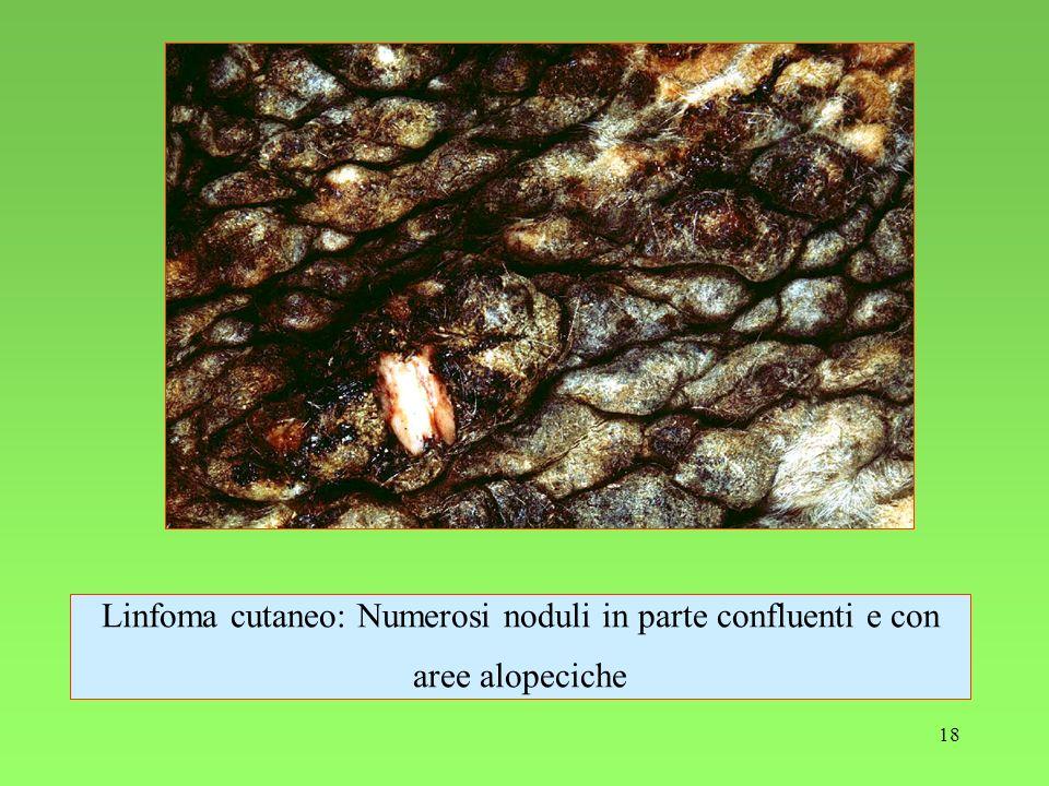 Linfoma cutaneo: Numerosi noduli in parte confluenti e con aree alopeciche