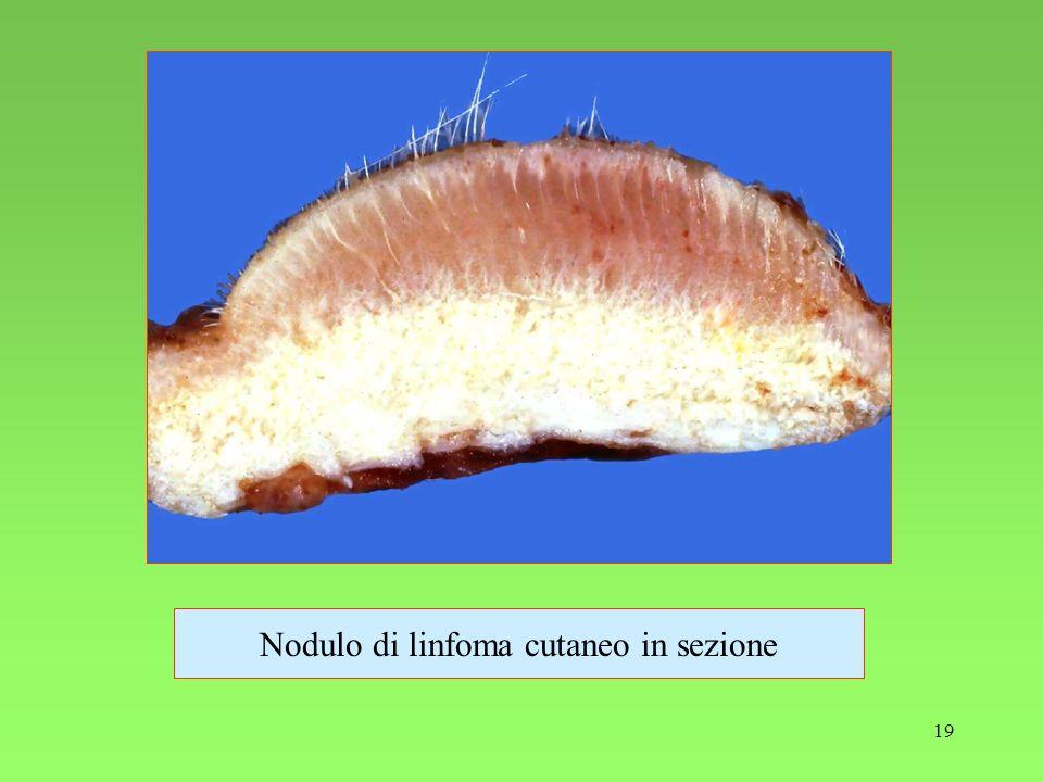Nodulo di linfoma cutaneo in sezione