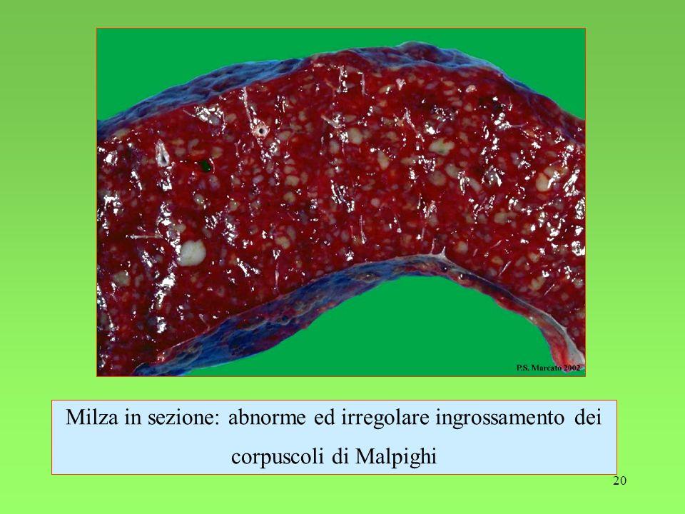Milza in sezione: abnorme ed irregolare ingrossamento dei corpuscoli di Malpighi