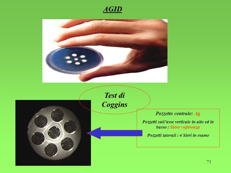 AGID Test di Coggins Pozzetto centrale: Ag