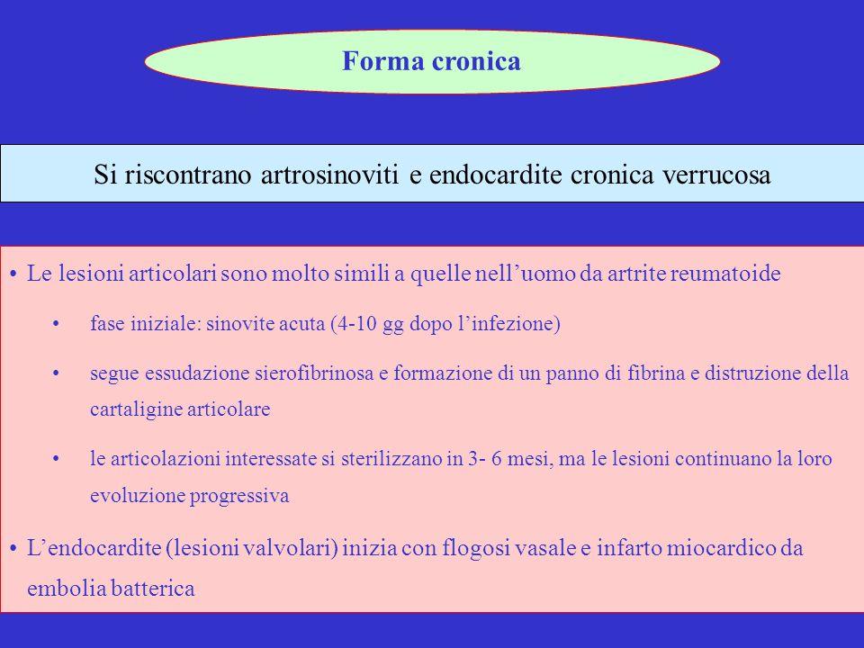 Si riscontrano artrosinoviti e endocardite cronica verrucosa