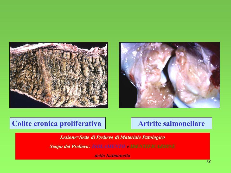 Colite cronica proliferativa Artrite salmonellare