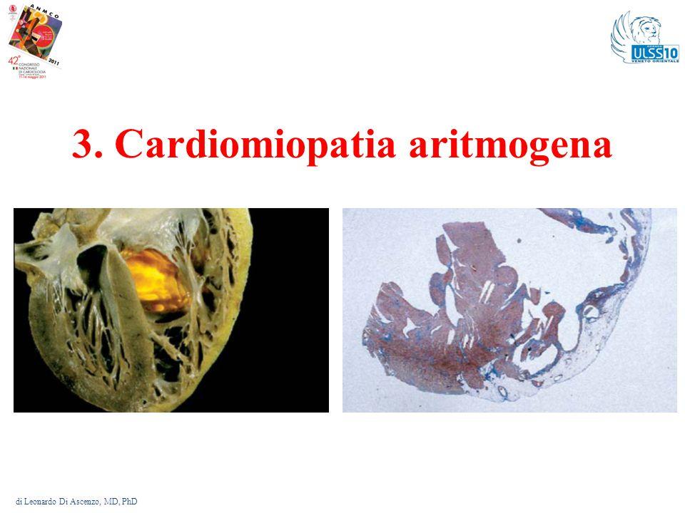 3. Cardiomiopatia aritmogena