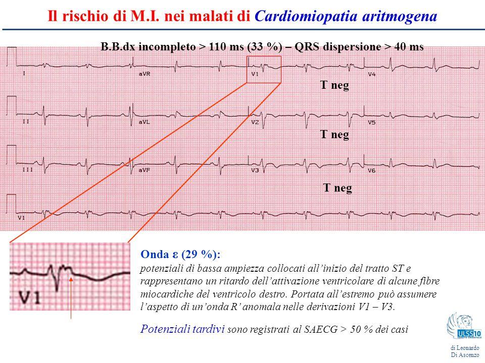 Il rischio di M.I. nei malati di Cardiomiopatia aritmogena