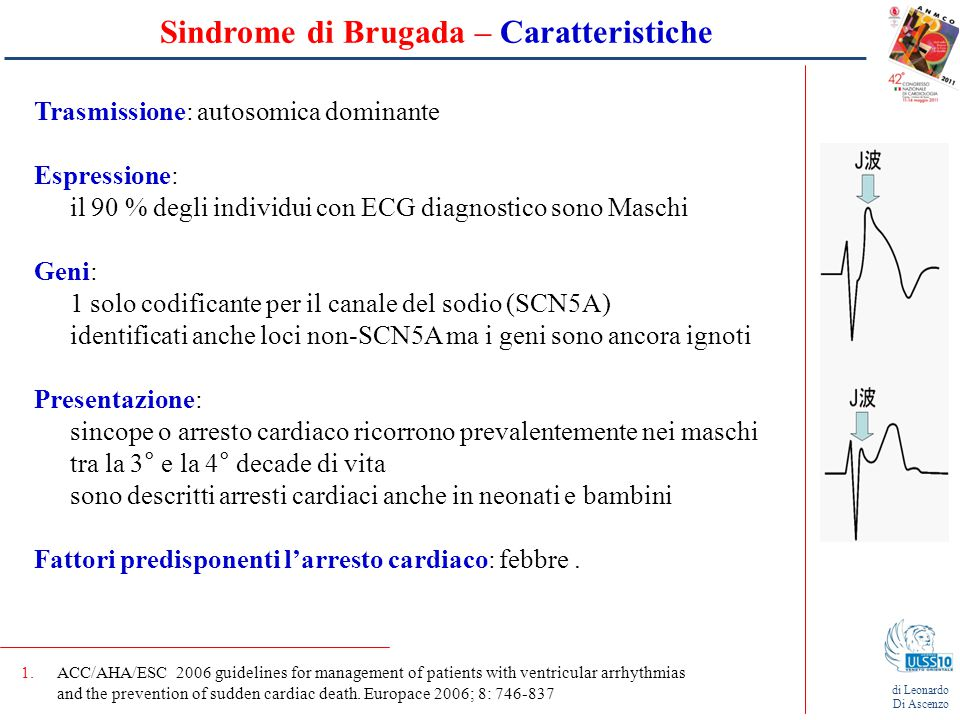 Sindrome di Brugada – Caratteristiche