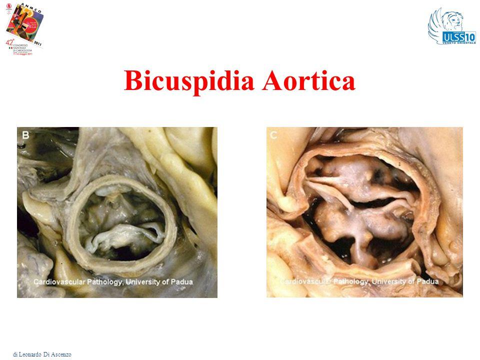 Bicuspidia Aortica di Leonardo Di Ascenzo
