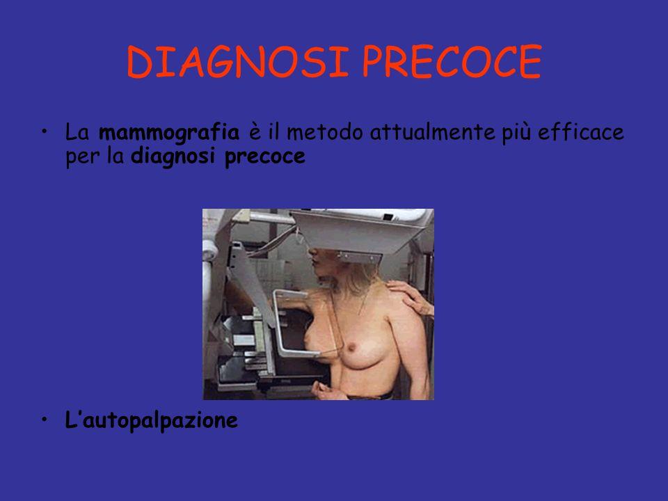 DIAGNOSI PRECOCE La mammografia è il metodo attualmente più efficace per la diagnosi precoce.