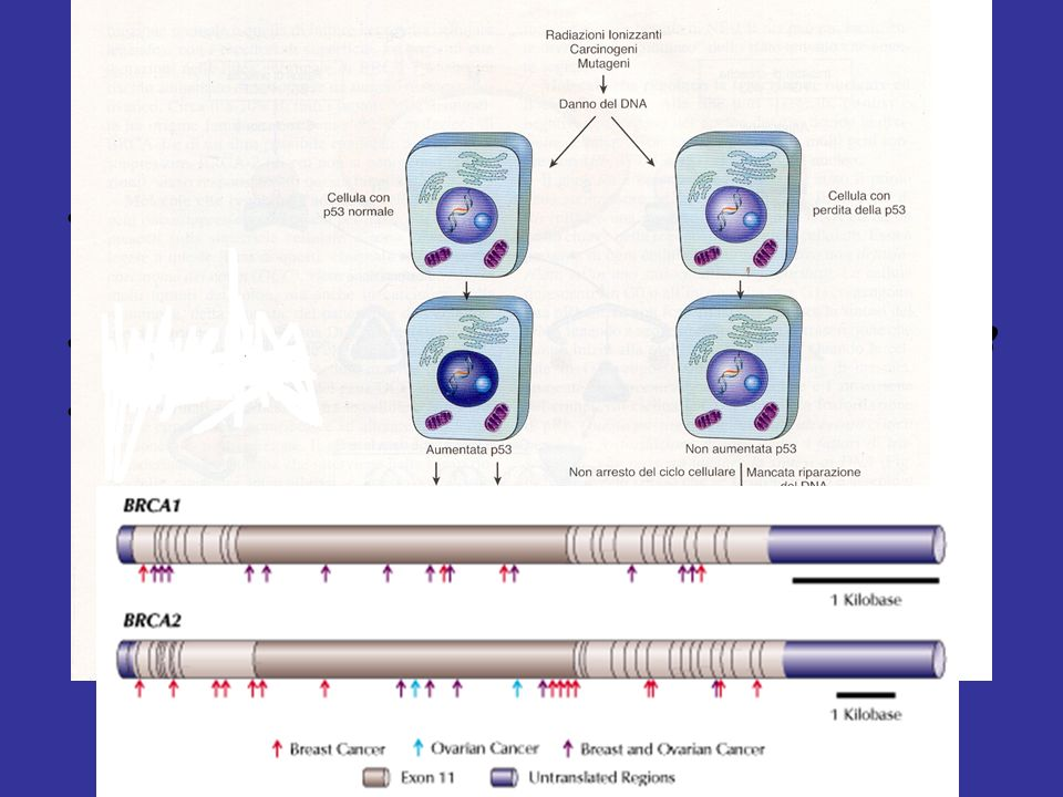 Fattori genetici Sovraespressione del protoncogene c-erbB2(o c-neu )