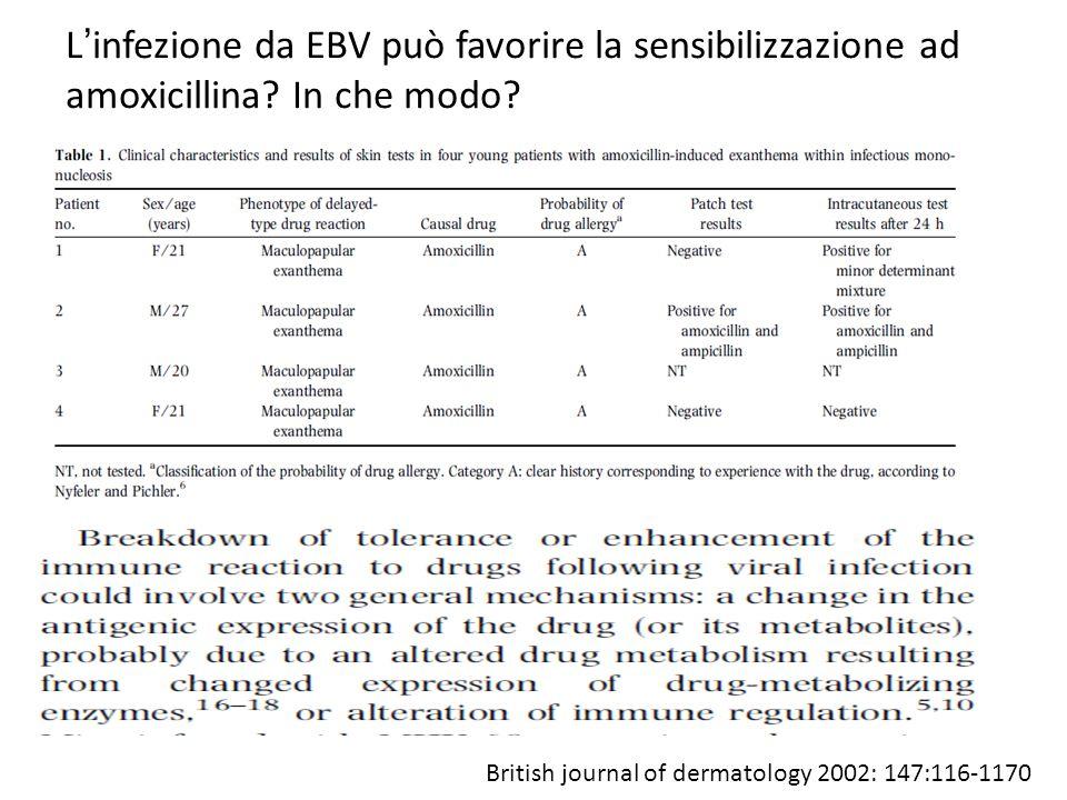 L'infezione da EBV può favorire la sensibilizzazione ad amoxicillina