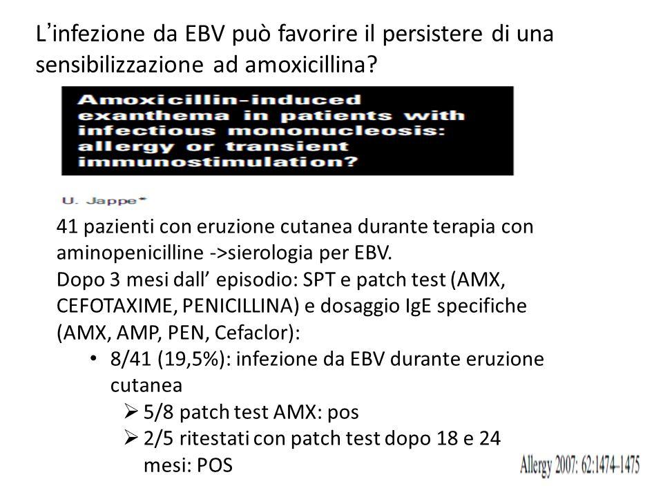 L'infezione da EBV può favorire il persistere di una sensibilizzazione ad amoxicillina