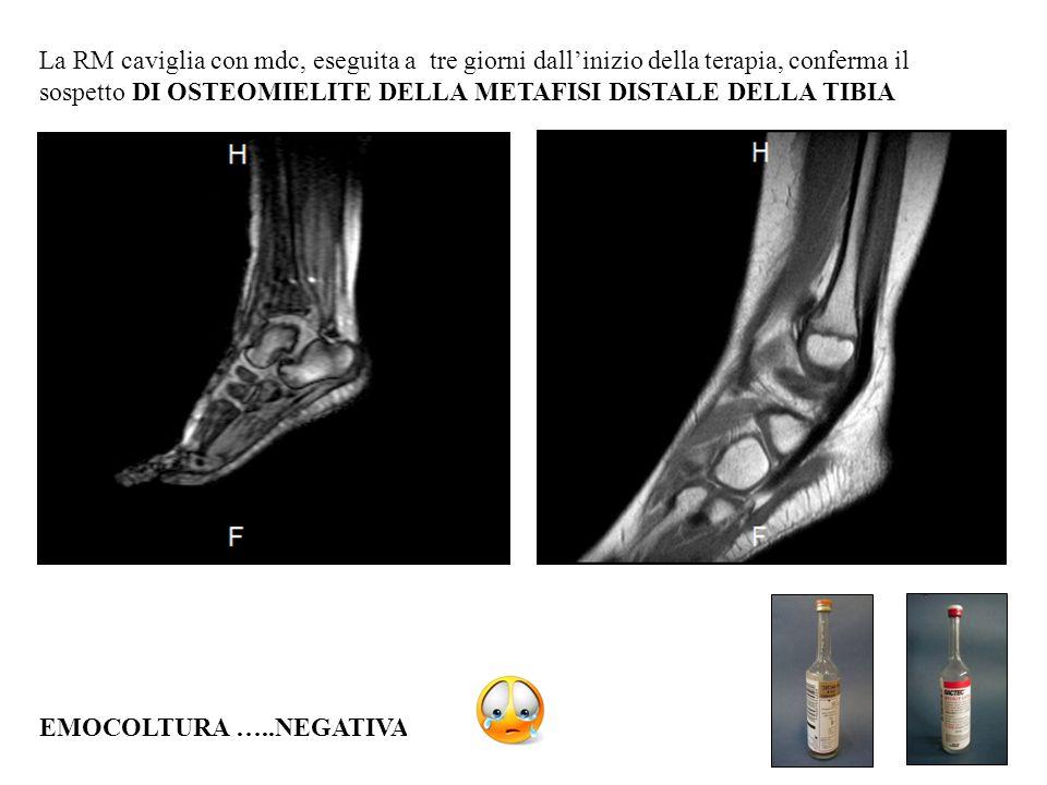 La RM caviglia con mdc, eseguita a tre giorni dall'inizio della terapia, conferma il sospetto DI OSTEOMIELITE DELLA METAFISI DISTALE DELLA TIBIA