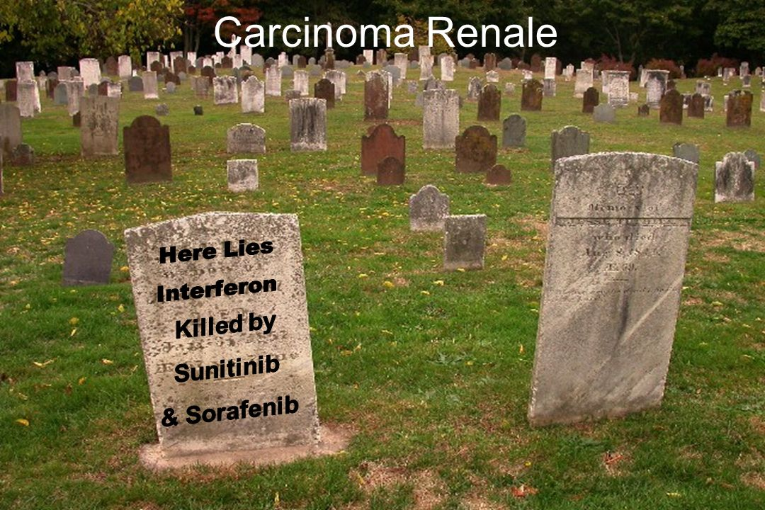 Carcinoma Renale Here Lies Interferon Killed by Sunitinib & Sorafenib