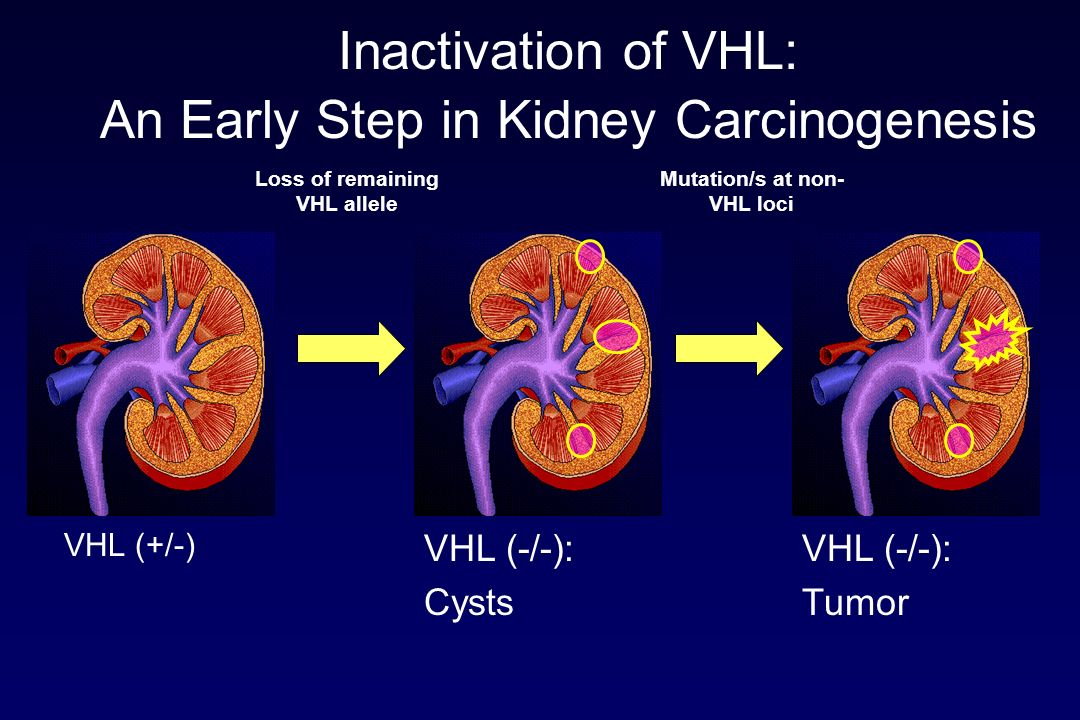 Inactivation of VHL: An Early Step in Kidney Carcinogenesis