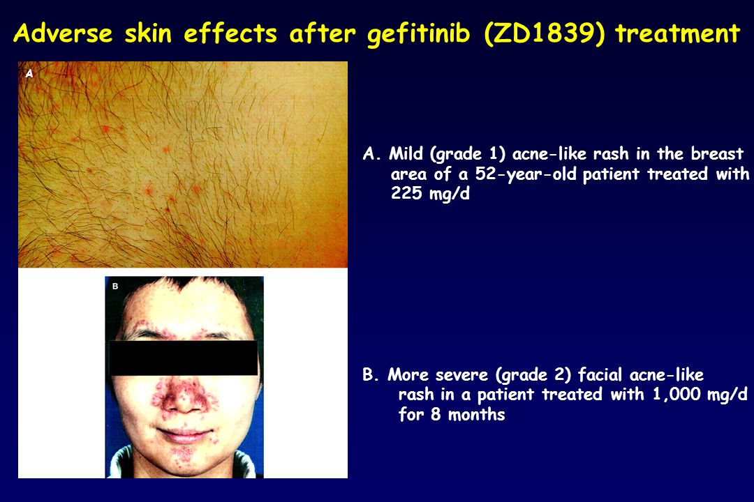 Adverse skin effects after gefitinib (ZD1839) treatment