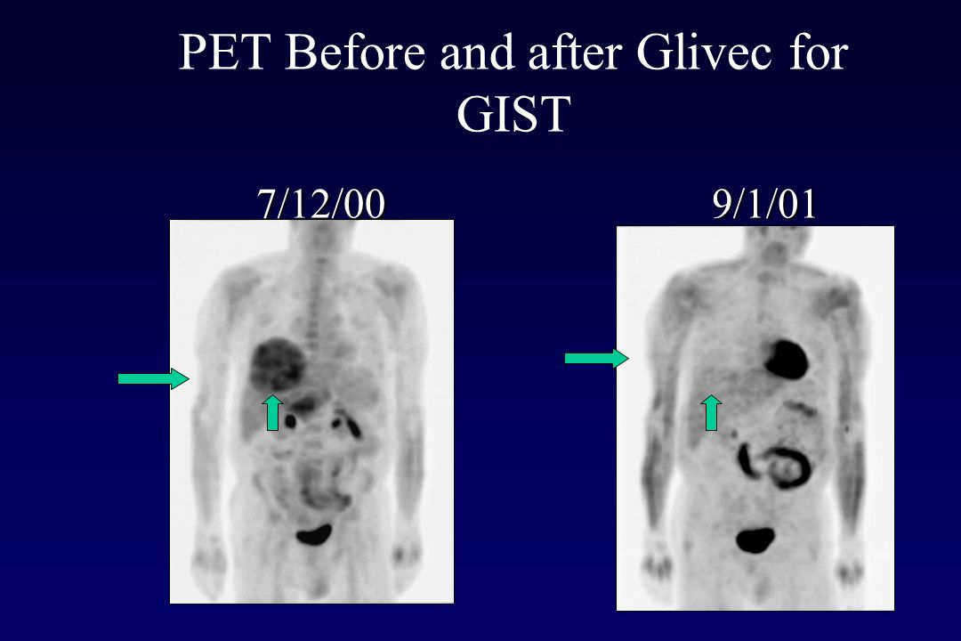 PET Before and after Glivec for GIST
