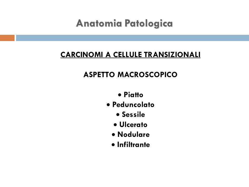 CARCINOMI A CELLULE TRANSIZIONALI