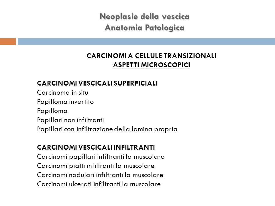 Neoplasie della vescica CARCINOMI A CELLULE TRANSIZIONALI