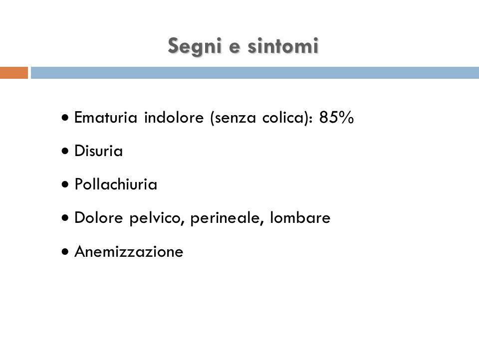Segni e sintomi Ematuria indolore (senza colica): 85% Disuria