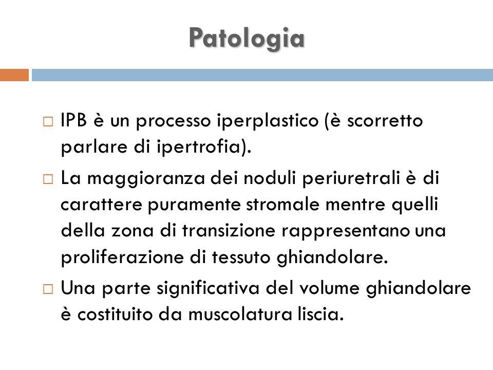 Patologia IPB è un processo iperplastico (è scorretto parlare di ipertrofia).