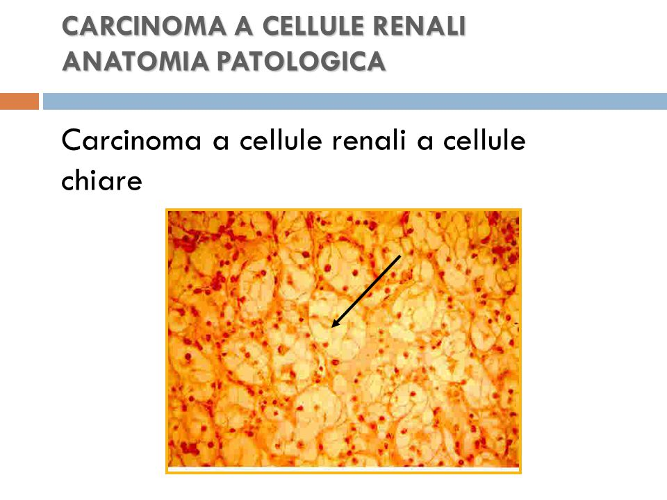 CARCINOMA A CELLULE RENALI ANATOMIA PATOLOGICA Carcinoma a cellule renali a cellule chiare