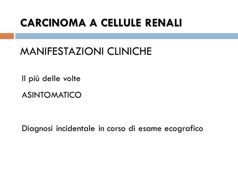 CARCINOMA A CELLULE RENALI MANIFESTAZIONI CLINICHE