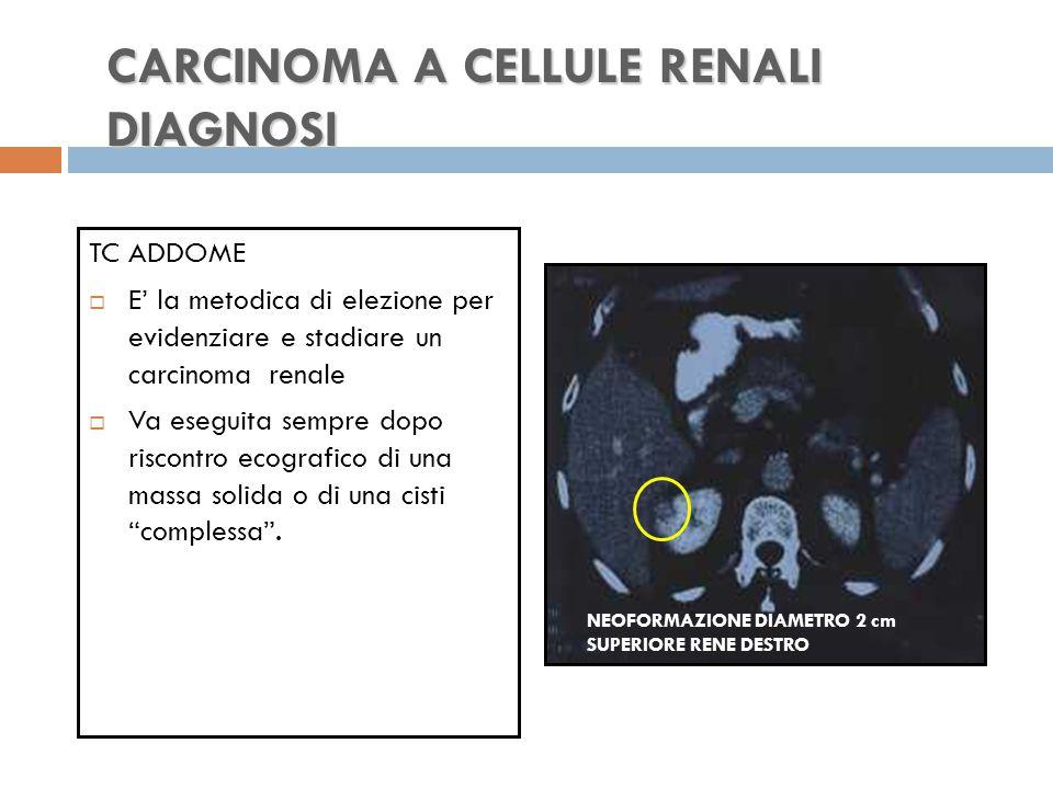 CARCINOMA A CELLULE RENALI DIAGNOSI