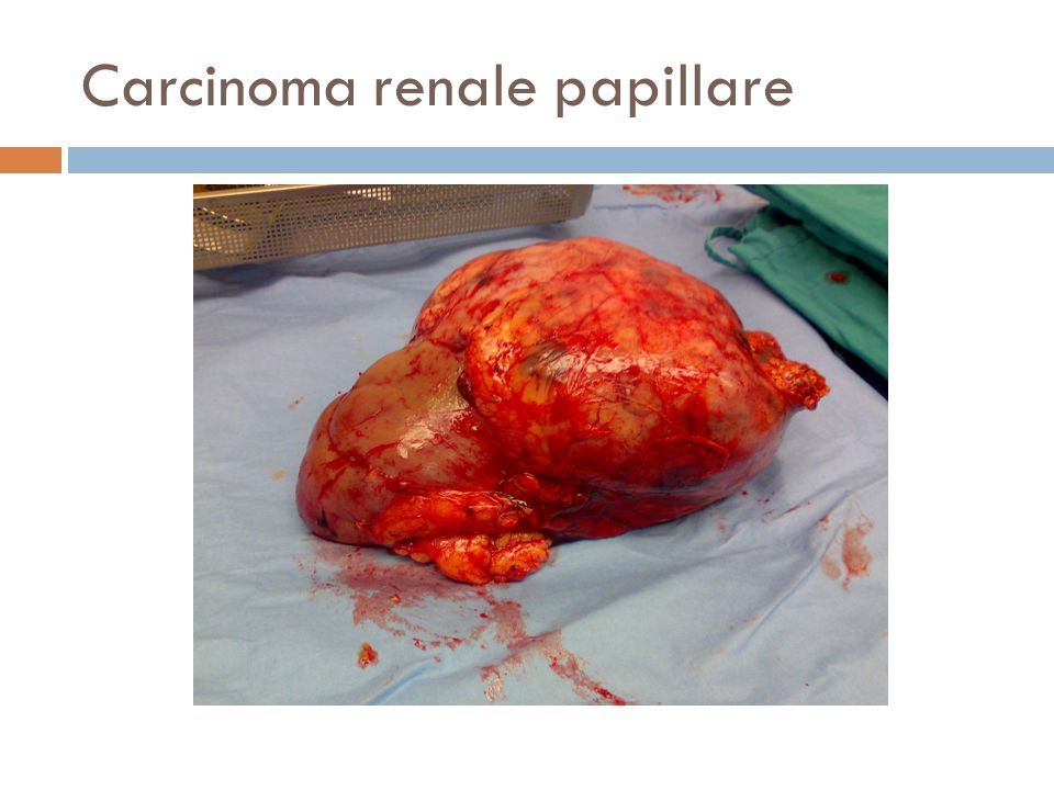 Carcinoma renale papillare
