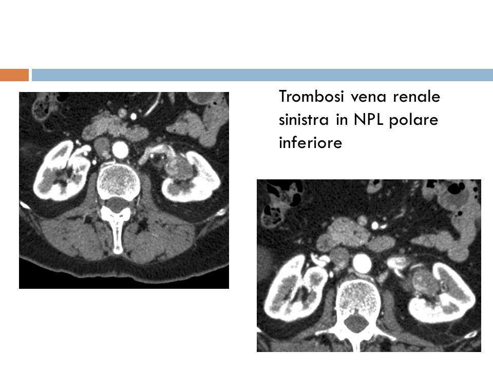 Trombosi vena renale sinistra in NPL polare inferiore