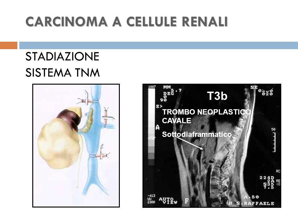 CARCINOMA A CELLULE RENALI STADIAZIONE SISTEMA TNM