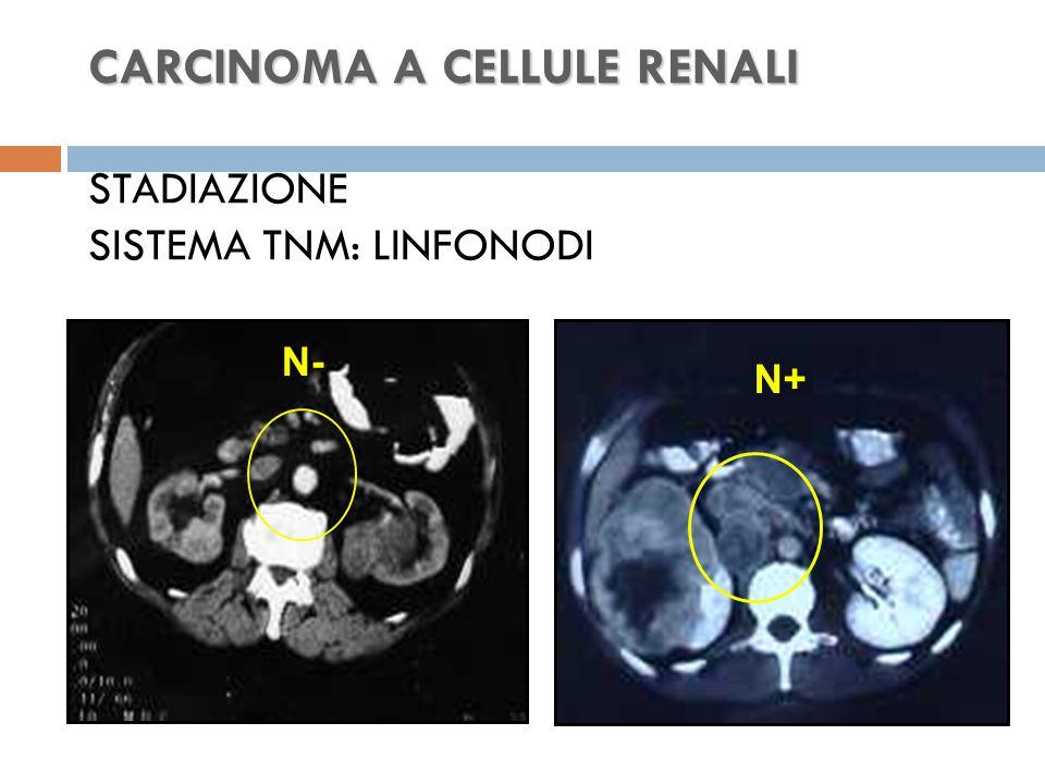 CARCINOMA A CELLULE RENALI STADIAZIONE SISTEMA TNM: LINFONODI