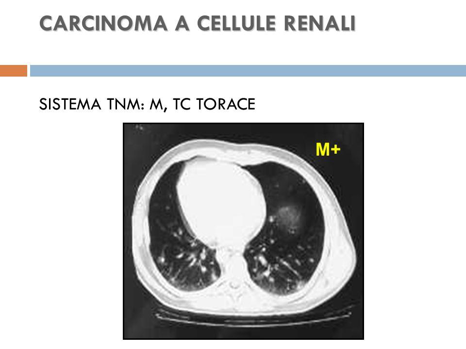 CARCINOMA A CELLULE RENALI SISTEMA TNM: M, TC TORACE