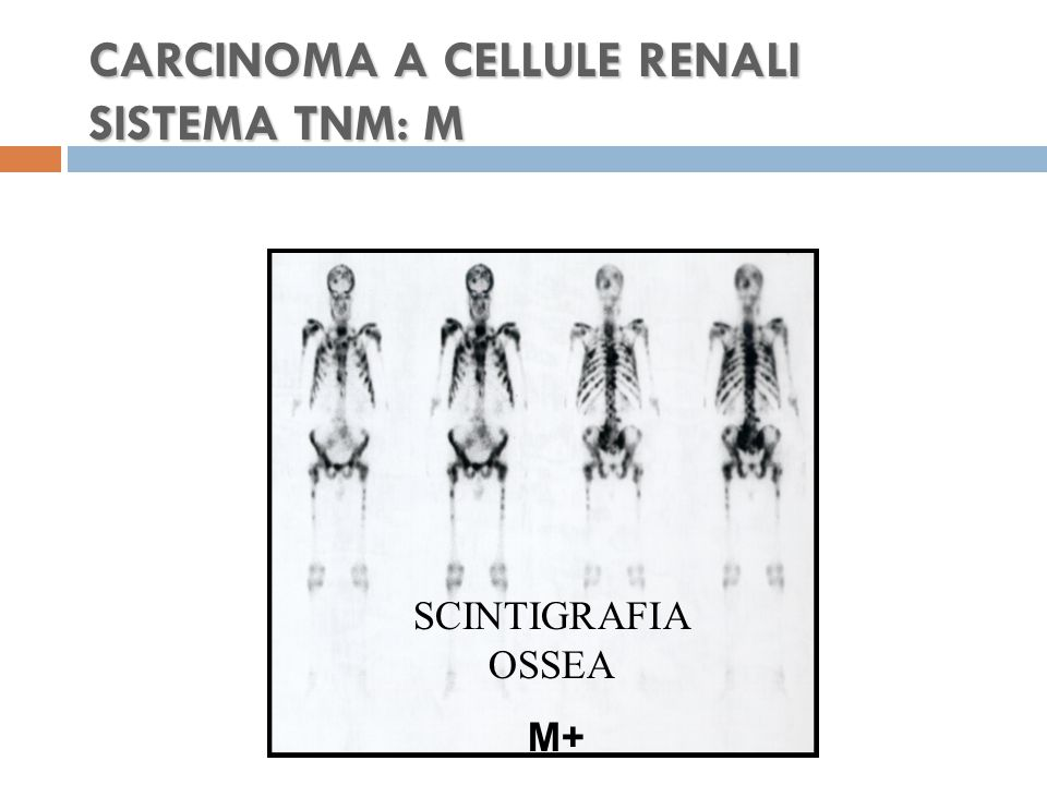 CARCINOMA A CELLULE RENALI SISTEMA TNM: M