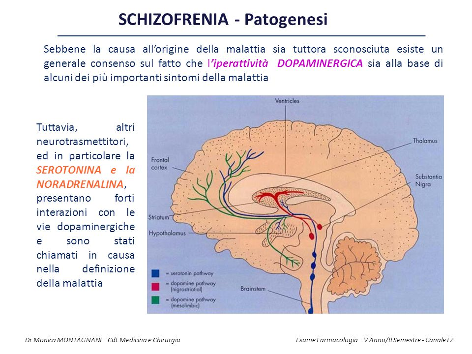 SCHIZOFRENIA - Patogenesi