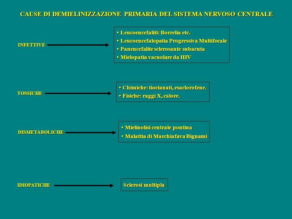 CAUSE DI DEMIELINIZZAZIONE PRIMARIA DEL SISTEMA NERVOSO CENTRALE