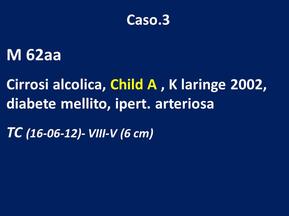 Caso.3 M 62aa. Cirrosi alcolica, Child A , K laringe 2002, diabete mellito, ipert.