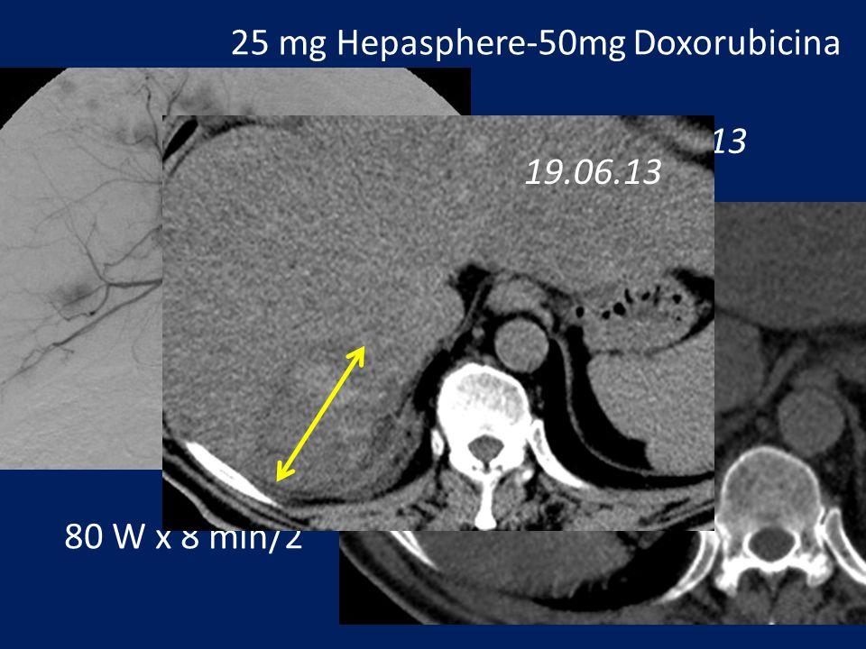 25 mg Hepasphere-50mg Doxorubicina