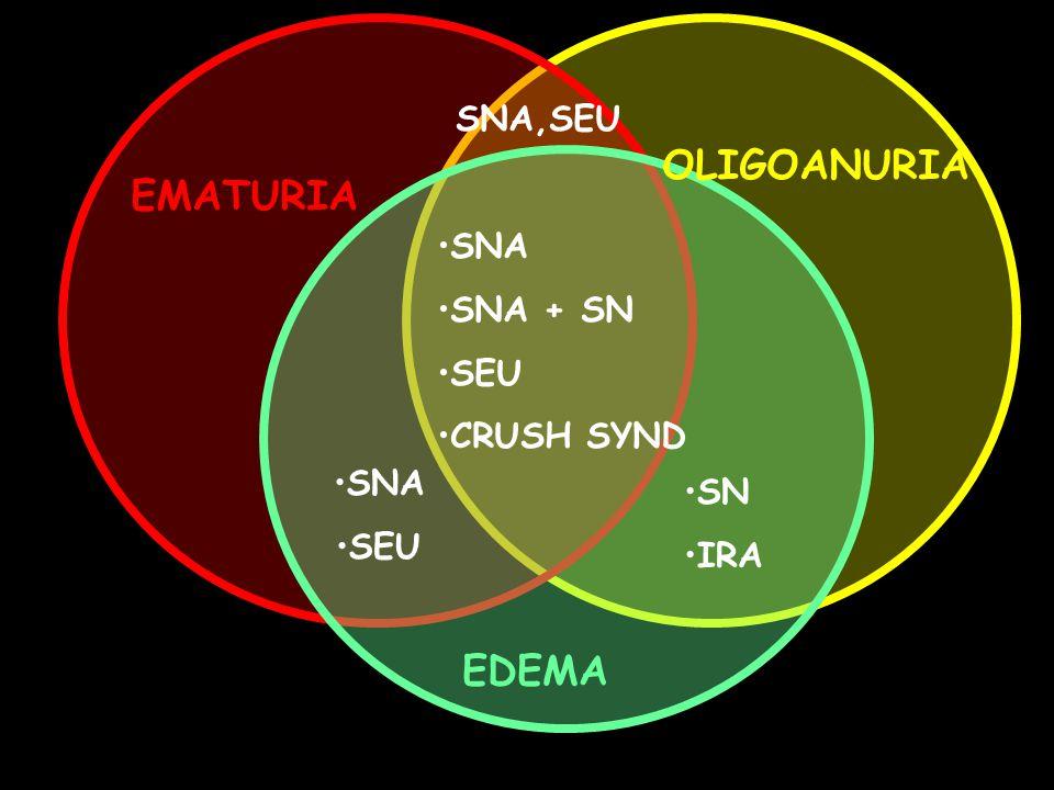 OLIGOANURIA EDEMA SNA,SEU EMATURIA SNA SNA + SN SEU CRUSH SYND SNA SN
