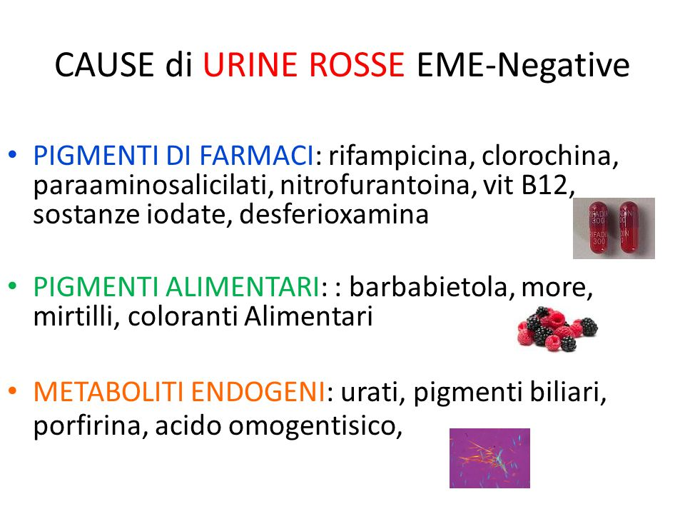 CAUSE di URINE ROSSE EME-Negative