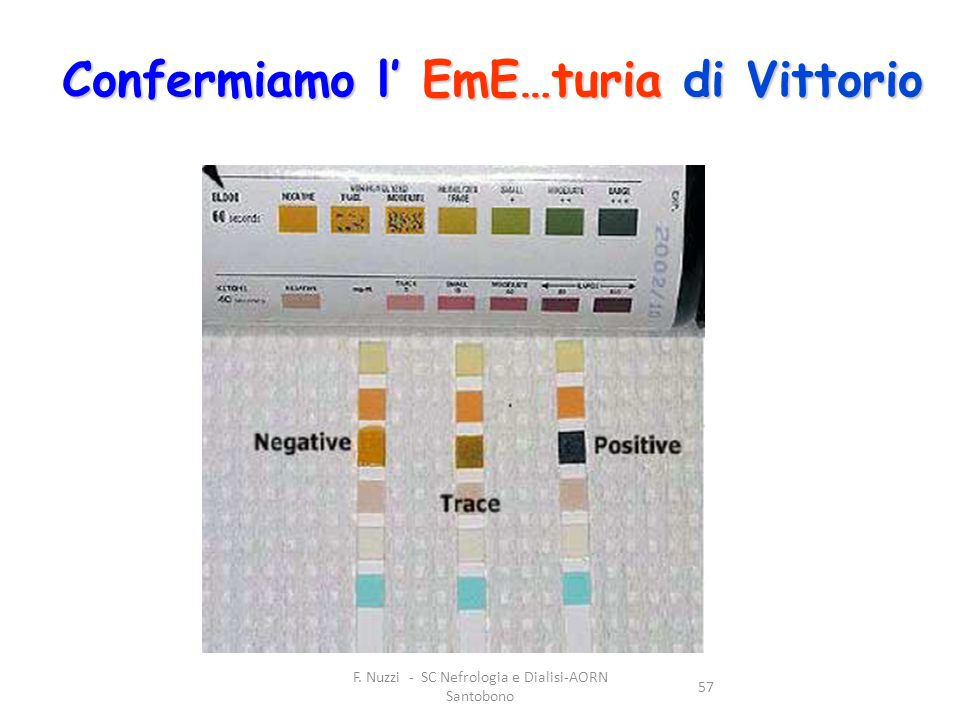 F. Nuzzi - SC Nefrologia e Dialisi-AORN Santobono