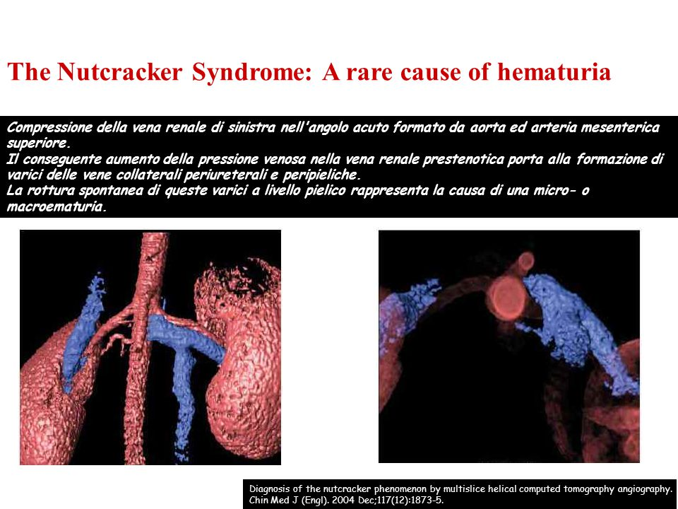 The Nutcracker Syndrome: A rare cause of hematuria