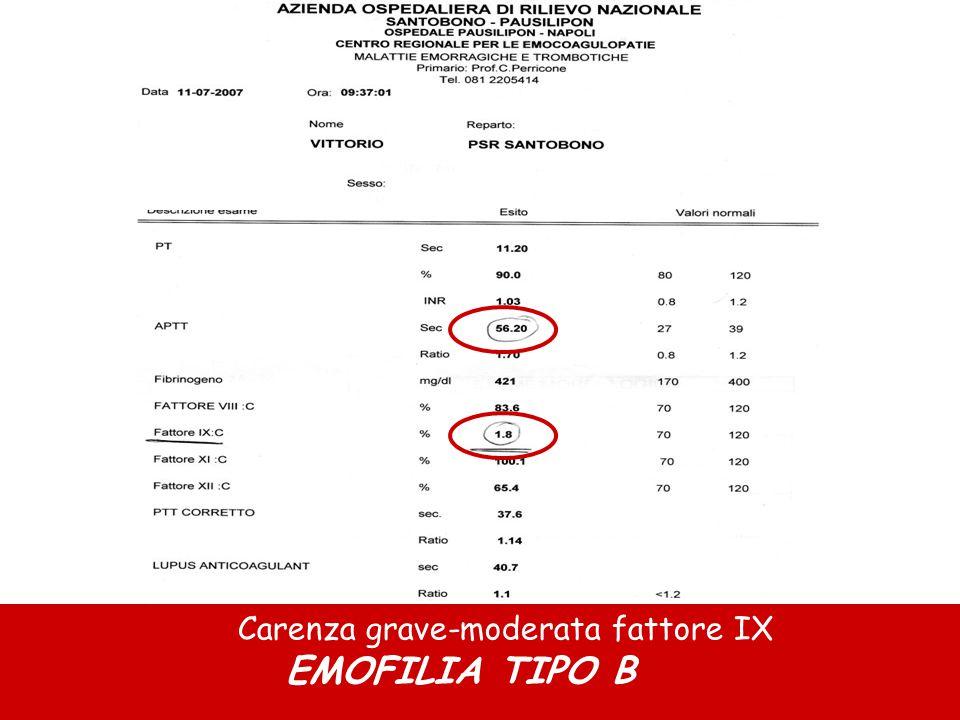 Carenza grave-moderata fattore IX