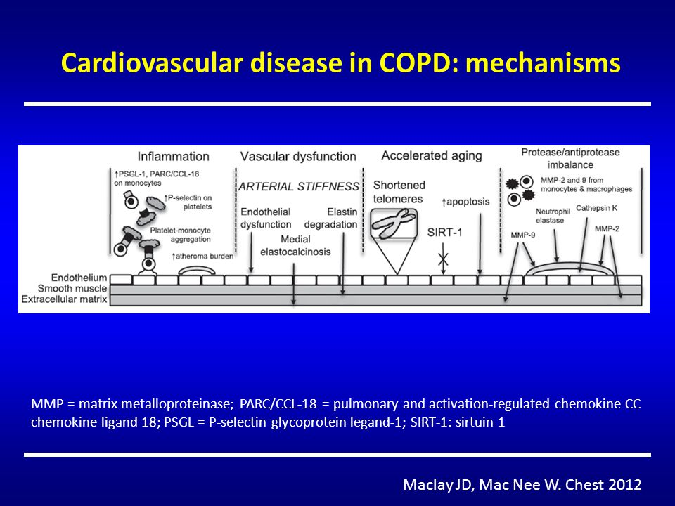 Cardiovascular disease in COPD: mechanisms