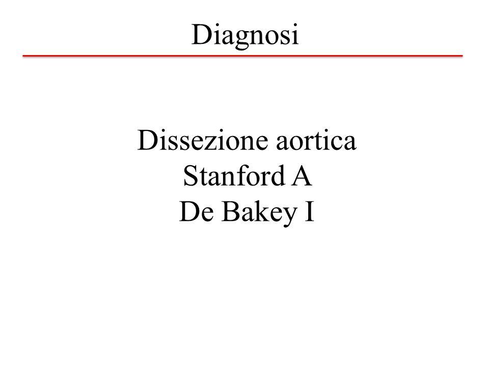 Dissezione aortica Stanford A