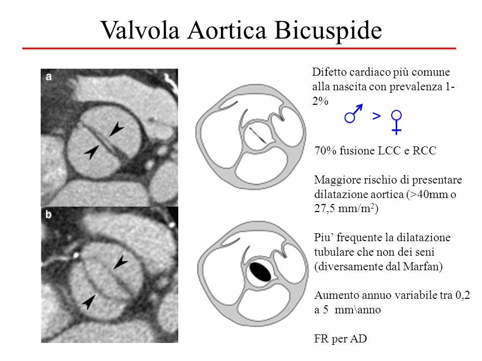 Valvola Aortica Bicuspide