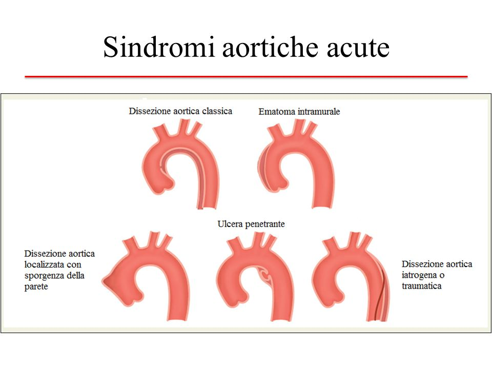 Sindromi aortiche acute