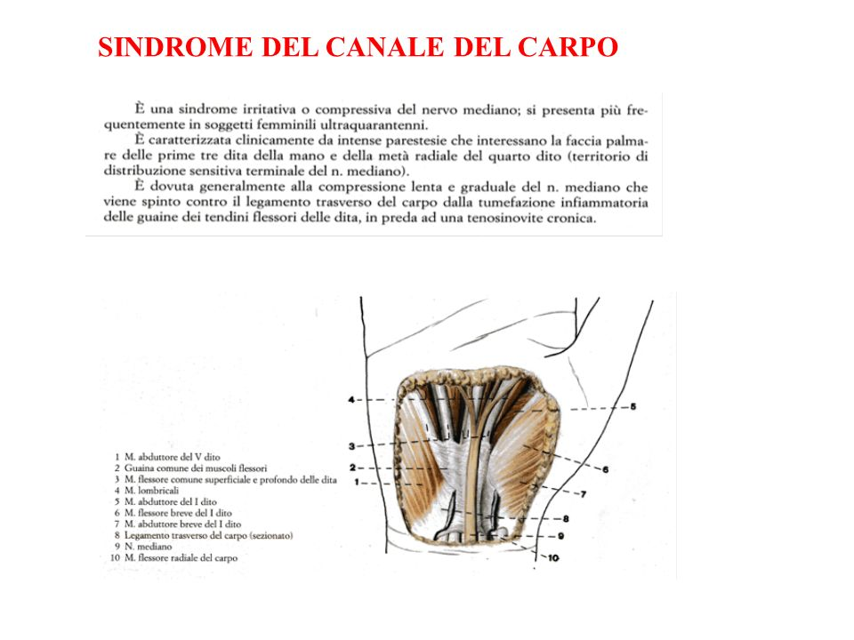 SINDROME DEL CANALE DEL CARPO