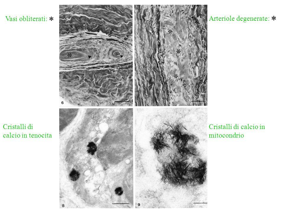 Vasi obliterati: * Arteriole degenerate: * Cristalli di calcio in tenocita.