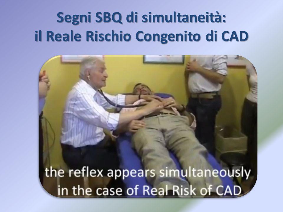 Segni SBQ di simultaneità: il Reale Rischio Congenito di CAD