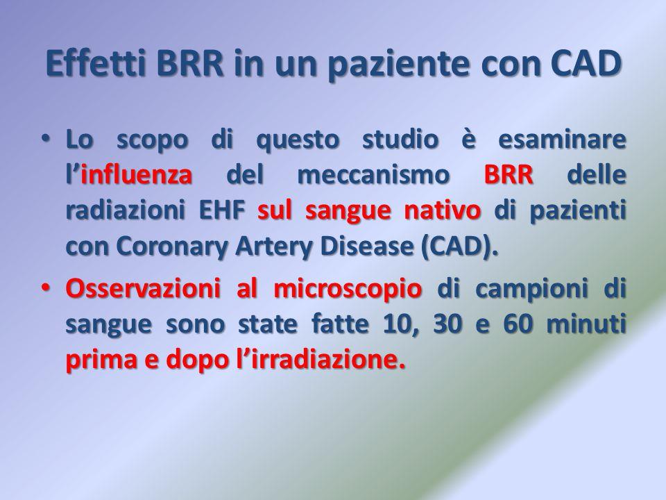 Effetti BRR in un paziente con CAD