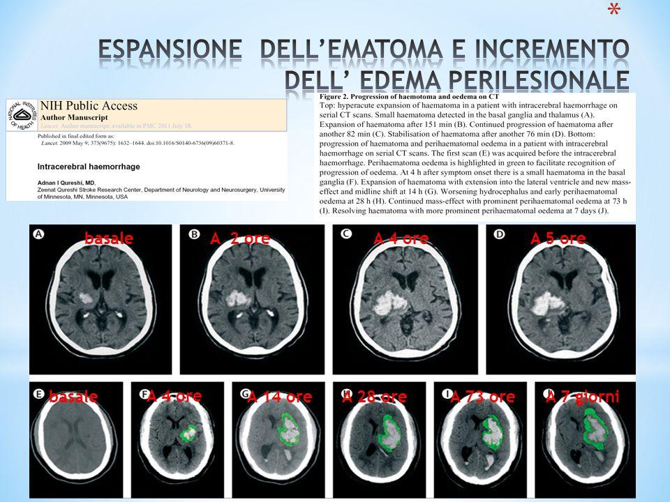 ESPANSIONE DELL'EMATOMA E INCREMENTO DELL' EDEMA PERILESIONALE